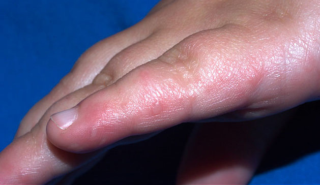 Image of hand, showing rash from hand foot and mouth