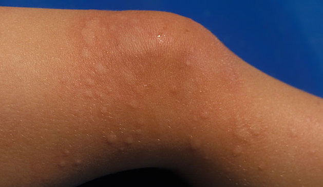 Image of rash from hives